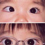 治療を目的にした子供用メガネ
